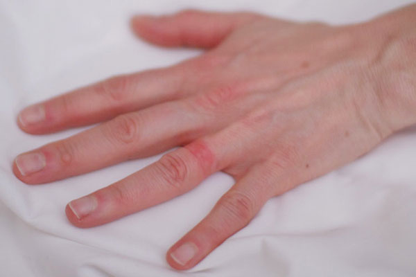 allergiya-na-nikel-4